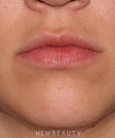 dr-quenby-erickson-natural-looking-lips-b