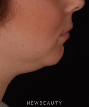 dr-kian-karimi-chin-augmentation-b