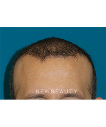 dr-adam-hamawy-hair-treatment-b