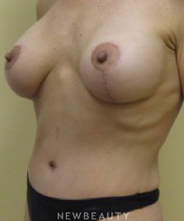 dr-beth-collins-breast-augmentation-tummy-tuck-b