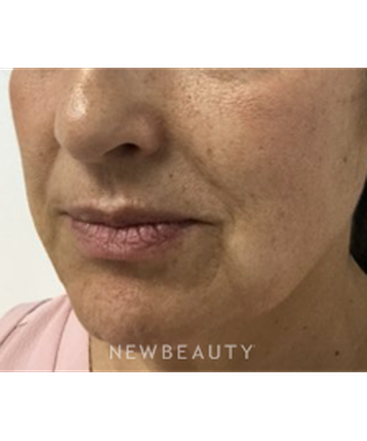 dr-julie-russak-lower-facelift-b