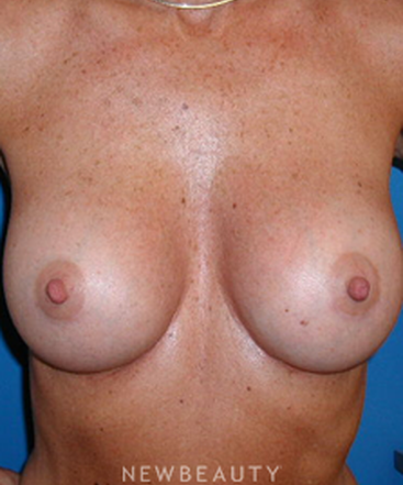 dr-george-sanders-breast-implants-b