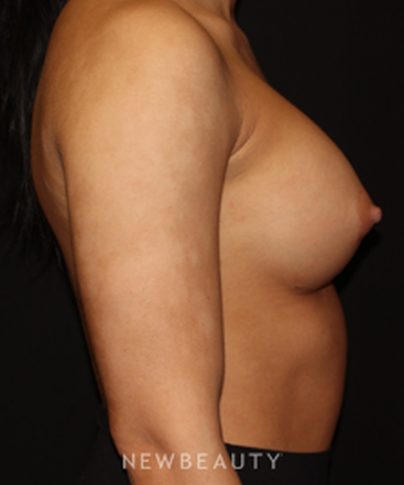 dr-shwetambara-parakh-breast-augmentation-b