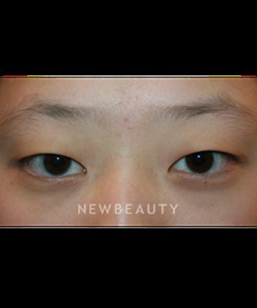 dr-john-kang-upper-blepharoplasty-b