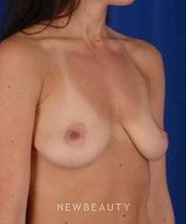 dr-peter-d-geldner-breast-augmentation-b