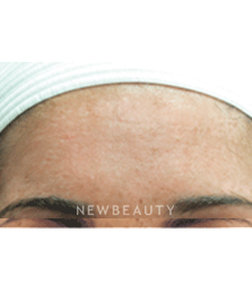 dr-jody-levine-lasers-chemical-peel-b