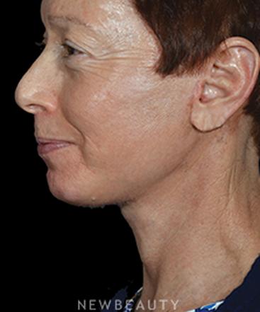 dr-ryan-p-chastant-rejuvenating-results-b