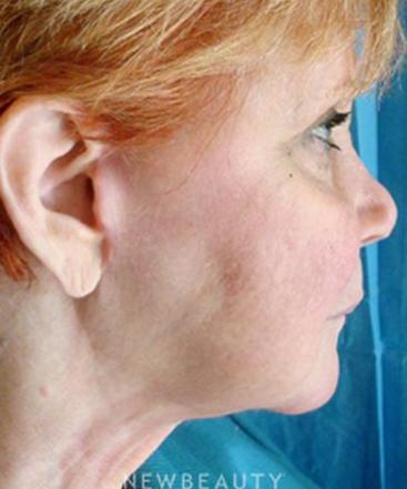 dr-hooman-khorasani-neck-liposuction-b