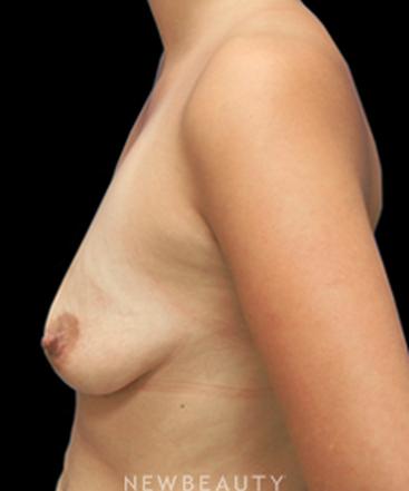 dr-sarah-mcmillan-breast-augmentation-breast-lift-b