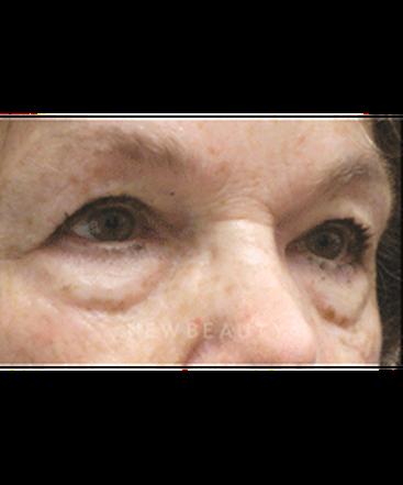 dr-jasmine-mohadjer-eyelid-lift-b