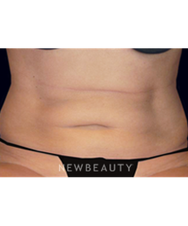 dr-mitchell-ross-coolsculpting-b