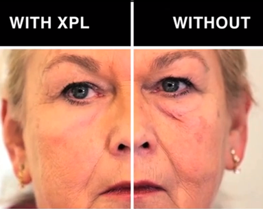 Scientists Have Developed a Cream That Smooths Wrinkles and Removes Eye Bags