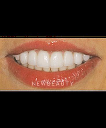 washington-dentistry-gum-contouringveneers-b