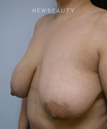 dr-linda-l-swanson-breast-lift-b