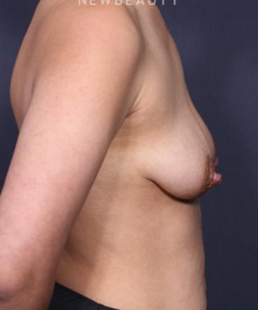 dr-johan-brahme-breast-augmentation-b