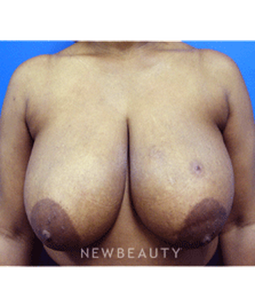 dr-kevin-tehrani-breast-reduction-b