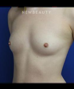 dr-joseph-russo-a-fuller-bust-breast-ebg-b