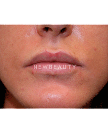 dr-christine-hamori-lip-augmentation-b
