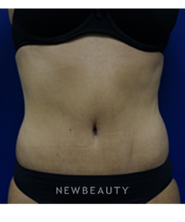 dr-kevin-tehrani-liposuction-tummy-tuck-b