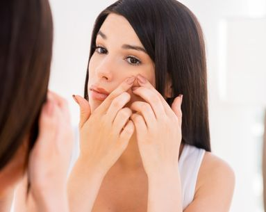 What to Do When You're Genetically Prone to Breakouts