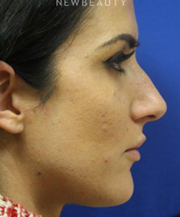 dr-jennifer-levine-rhinoplasty-b