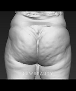 dr-brad-bengtson-cellulite-treatment-b