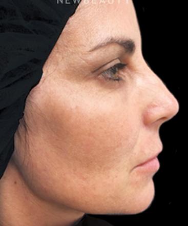 dr-janice-lima-maribona-browlift-cheek-augmentation-b