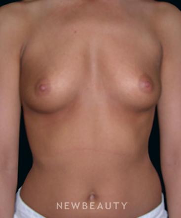 dr-thomas-hahm-breast-augmentation-b