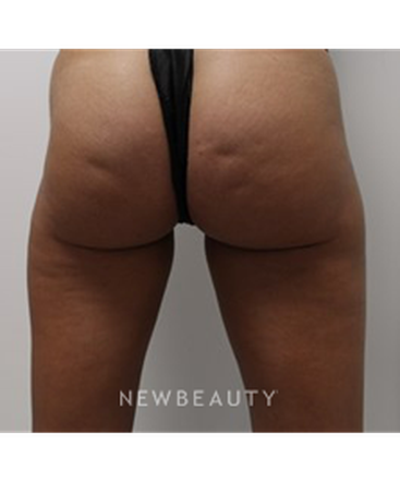 dr-julia-russak-cellulite-treatment-b