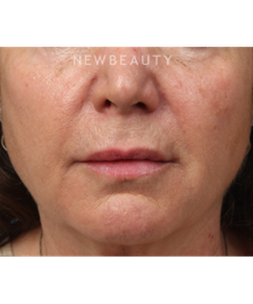 dr-kathleen-behr-injectables-fillers-b