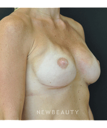dr-andrew-smith-breast-reconstruction-b