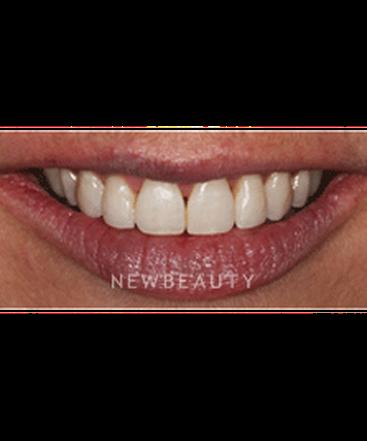 dr-neal-patel-braces-b
