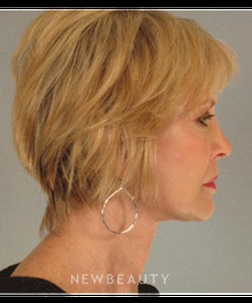 dr-mentz-eyelift-facelift-necklift-b