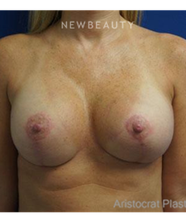 dr-kevin-tehrani-breast-enlargement-b