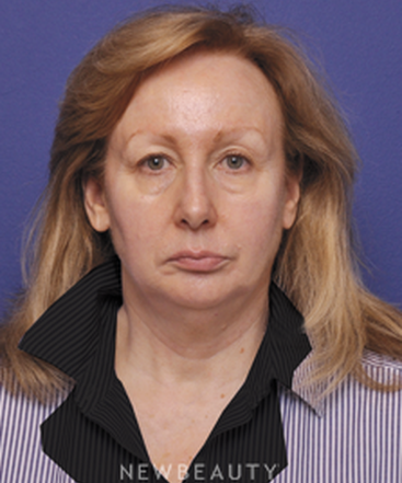 dr-alan-durkin-facelift-blepharoplasty-b