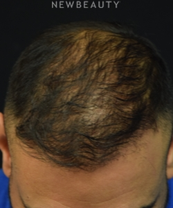 dr-jeffrey-b-wise-hair-transplant-for-hair-loss-b