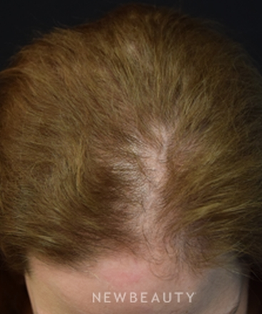 dr-jeffrey-b-wise-female-hair-loss-b