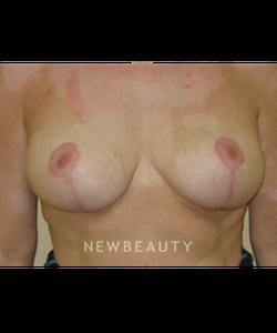 dr-beth-collins-breast-lift-b