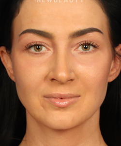 dr-raman-mahabir-lower-eyelid-b