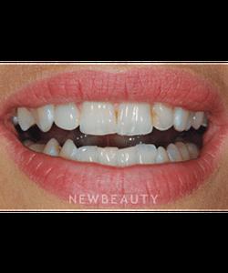 dr-ronald-goldstein-smile-makeover-invisalign-crowns-whitening-veneers-b