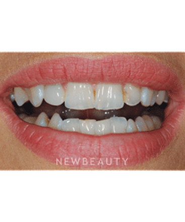 dr-ronald-goldstein-smile-makeover-invisalign-crowns-whitening-veneers-b