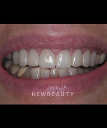 dr-jan-linhart-smile-makeover-b