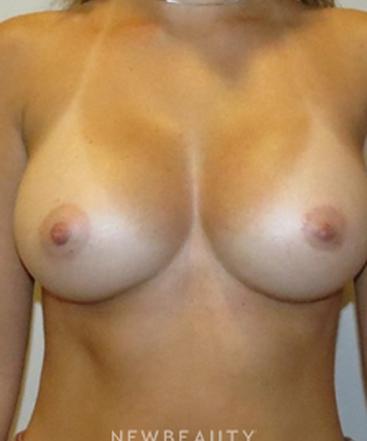 dr-rolando-morales-breast-implants-b