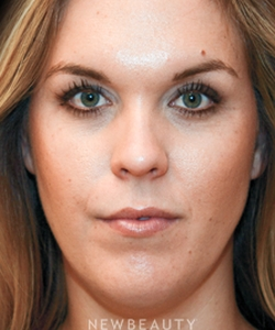 dr-janet-allenby-nonsurgical-facial-contouring-b