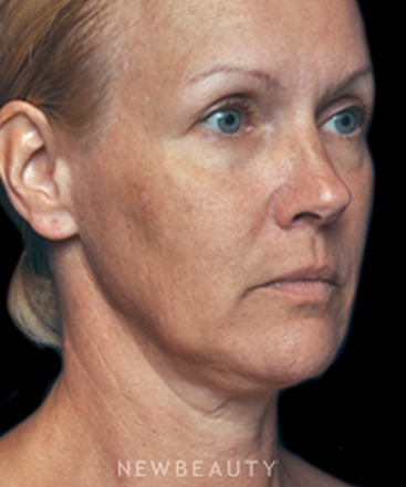 dr-alan-j-durkin-facial-rejuvenation-b