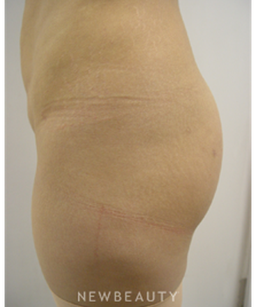 dr-kevin-tehrani-brazilian-butt-lift-butt-augmentation-b