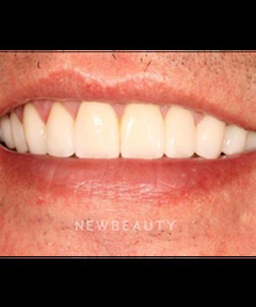 dr-jason-kasarsky-smile-makeover-b