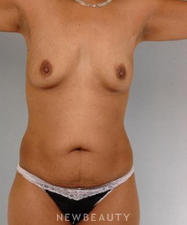 dr-german-newall-tummy-tuck-b