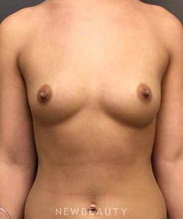 dr-irvin-wiesman-breast-augmentation-b
