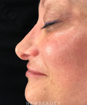 dr-jeffrey-wise-nonsurgical-rhinoplasty-b